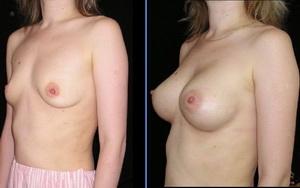 Ламизил крем кормление грудью